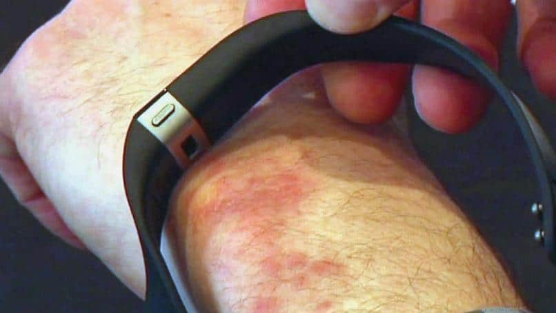 fitbit radiation rash